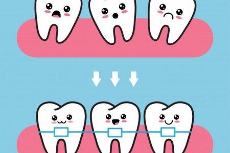 Шүдний аппарат зүүхээр төлөвлөсөн хүнд зөвлөх 8 зүйл