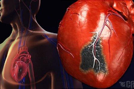 Зүрхний шигдээс өвчин гэж юу вэ?