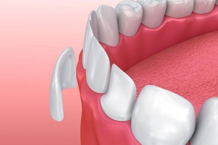 Шүдний паалан