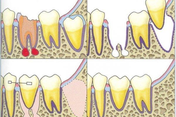 Шүд шилжүүлэн суулгах