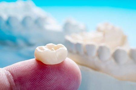 Авагддаггүй хиймэл шүдэлбэрийн тухай