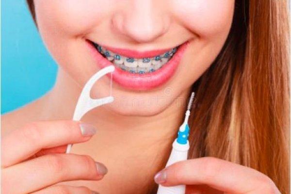 Аппарат зүүсэн шүдийг хэрхэн арчлах вэ?