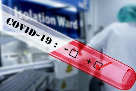 АНУ-д байгаа монгол иргэн коронавирусийн халдвар авсан гэж утсаар зөвлөгөө авчээ