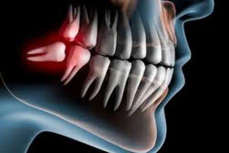Агт араа шүдний үүсгэдэг асуудлуудын талаар та юу мэдэх вэ?