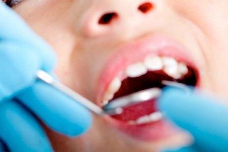 Шүдийг цоорлоос хамгаалж болох уу?
