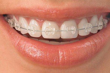 Шүдний гажиг засал гэж юу вэ?