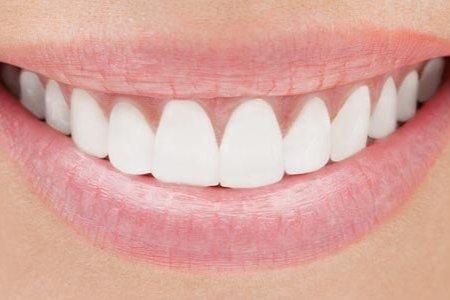 Шүд цайруулах эрсдэлтэй юу?