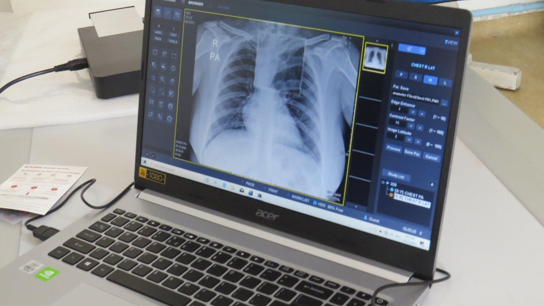 Орчин үеийн зөөврийн дижитал рентген аппарат хүлээн авлаа.