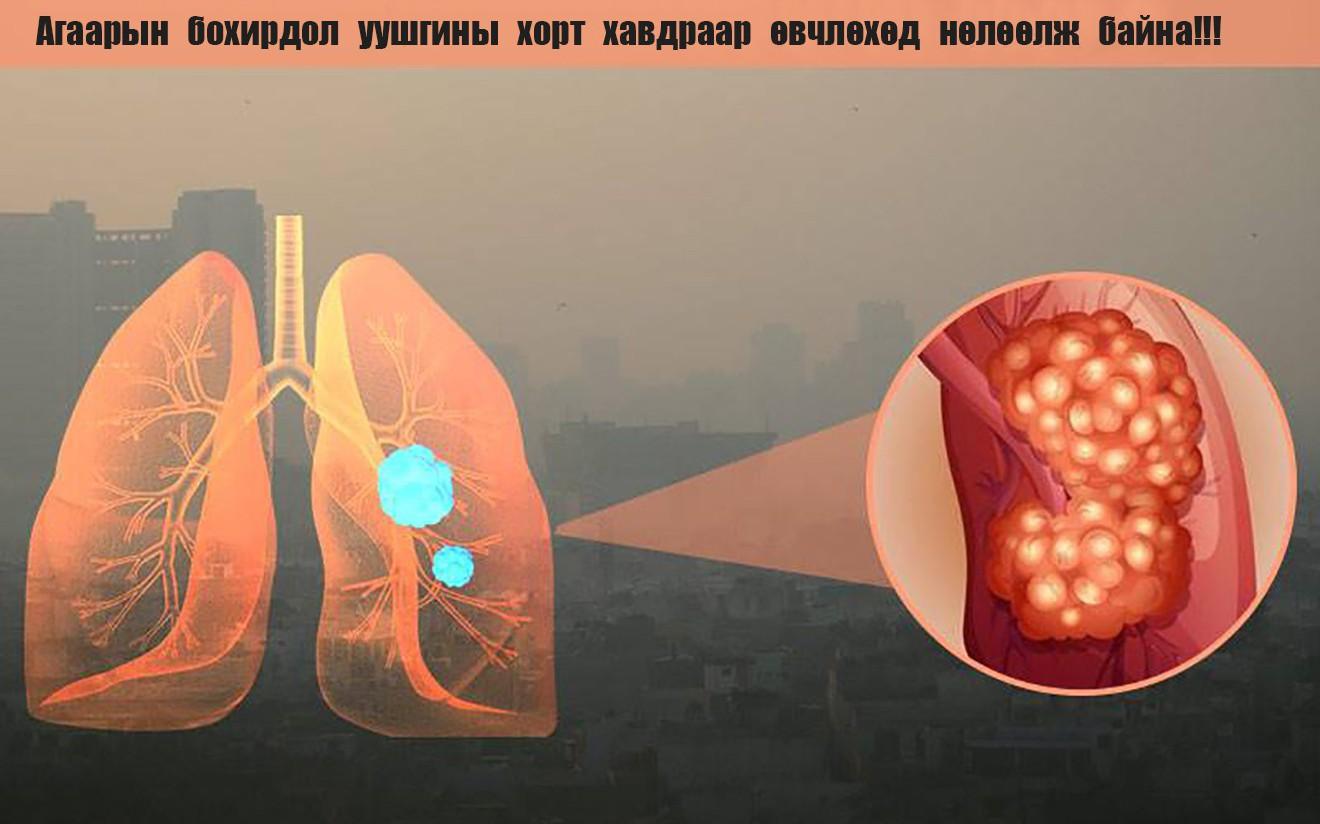 Нэг ч удаа тамхи татаж үзээгүй хүний уушги ийм болжээ