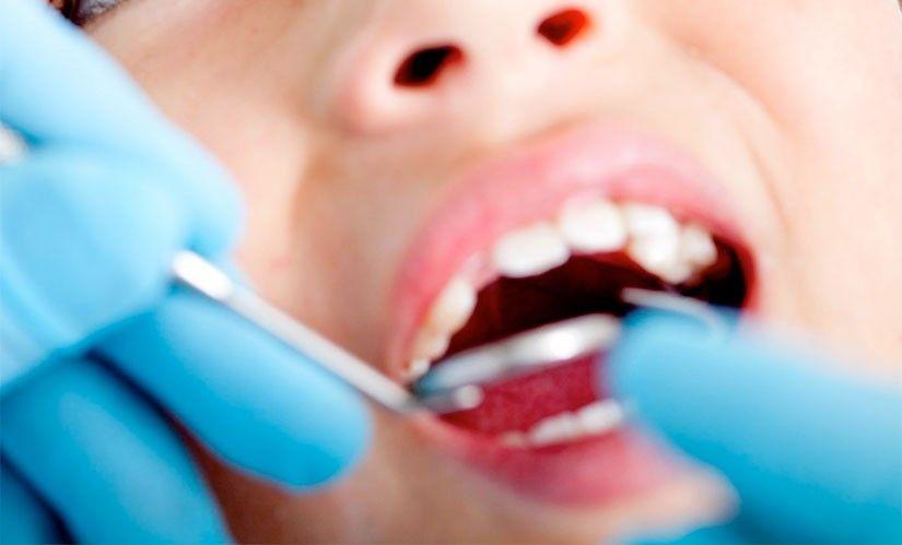虫歯は予防できますか
