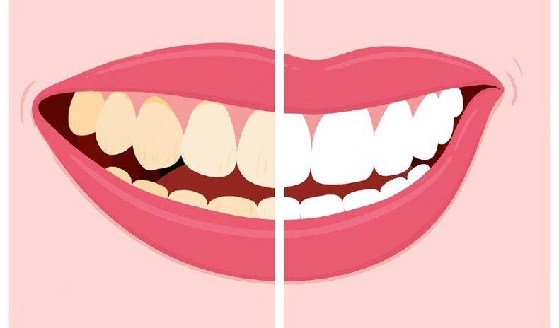 Та шүдээ эрүүл, цагаанаар нь хадгалахын тулд юу хэрэглэх хэрэгтэй вэ?