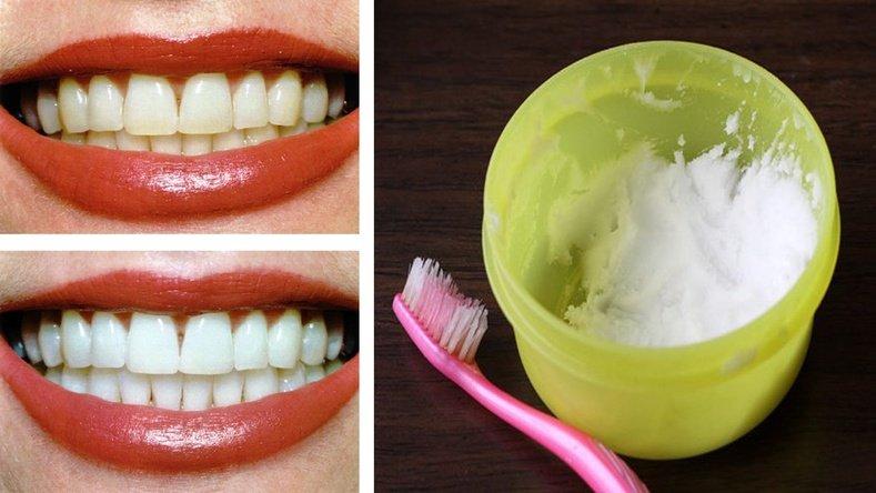 Гэрийн нөхцөлд шүд цайруулах хялбар аргууд