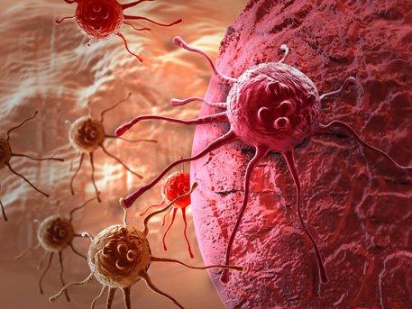 Хорт хавдрын 90% нь амьдралын буруу хэвшил, орчноос үүсдэг.