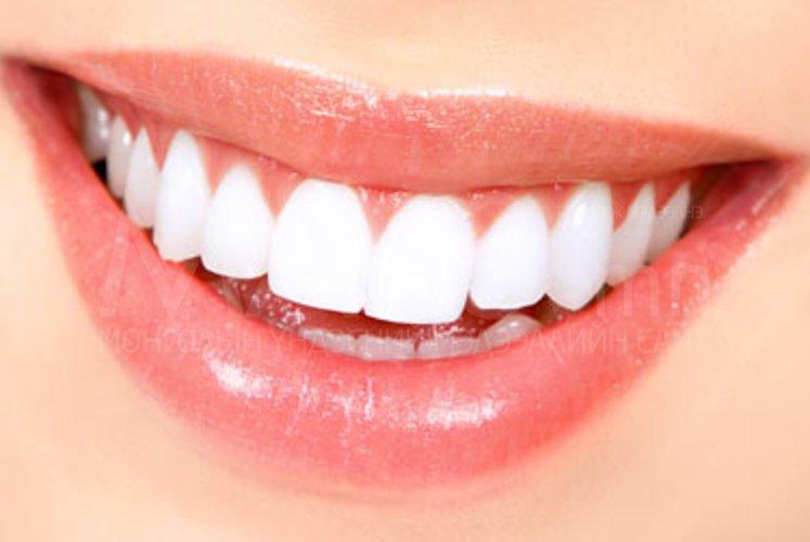 Шүдний өвдөлтийг түргэн хугацаанд намдаах аргууд