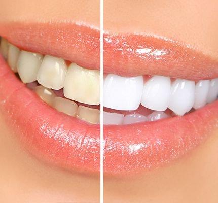 Та шүднийхээ өнгөнд хэр сэтгэл ханамжтай байдаг вэ?  Шүд цайруулах үйлчилгээний тухай