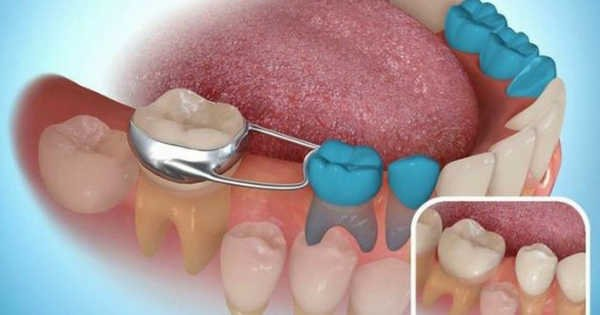 Эрт авагдсан сүүн шүдний зайг хадгалах зэмсэг