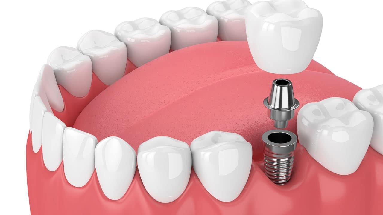 Имплант шүд гэж юу вэ?