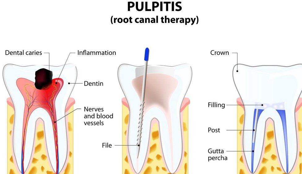 Шүдний сувгийн эмчилгээ