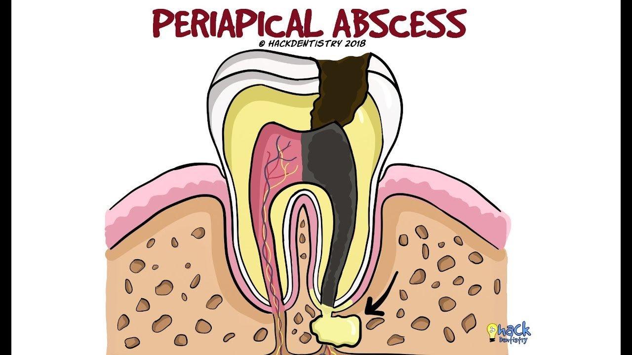Нэг шүдний рентген зураг