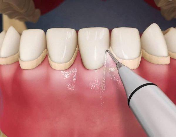 Шүдний чулуу гэж юу вэ?