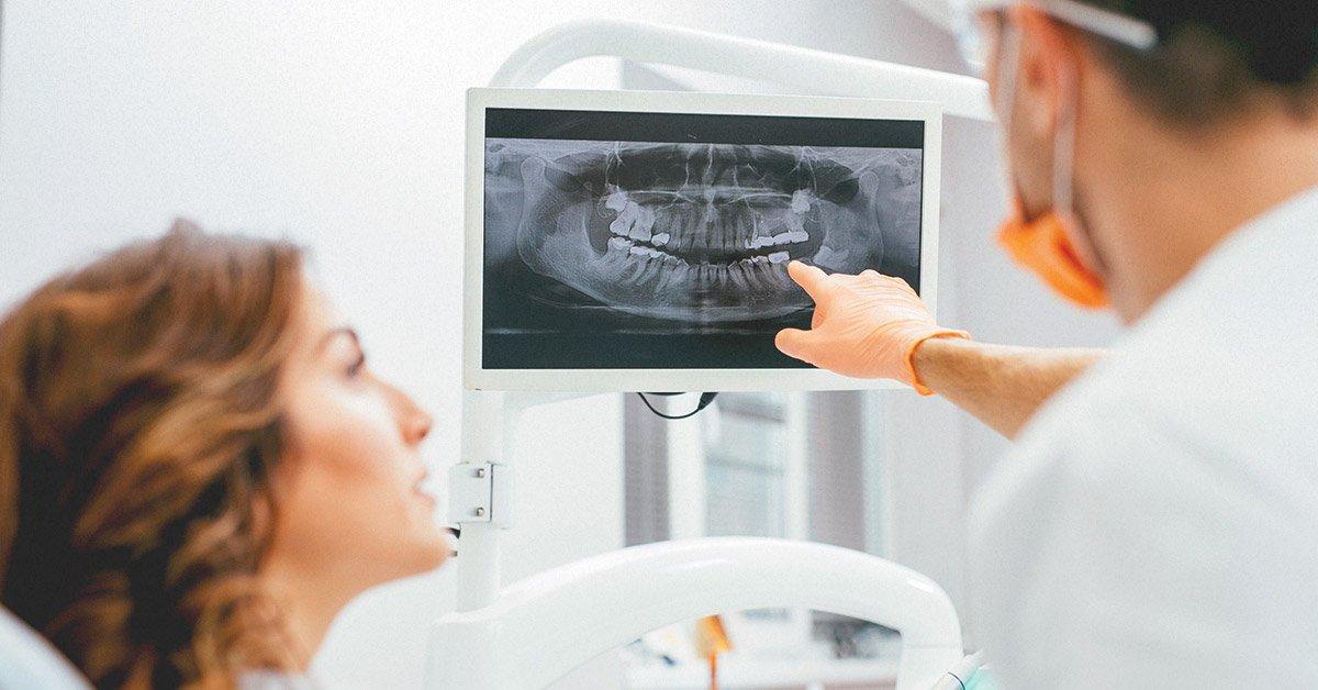 Шүдний рентген зураг авах үед хэр хэмжээний цацраг ялгардаг вэ?