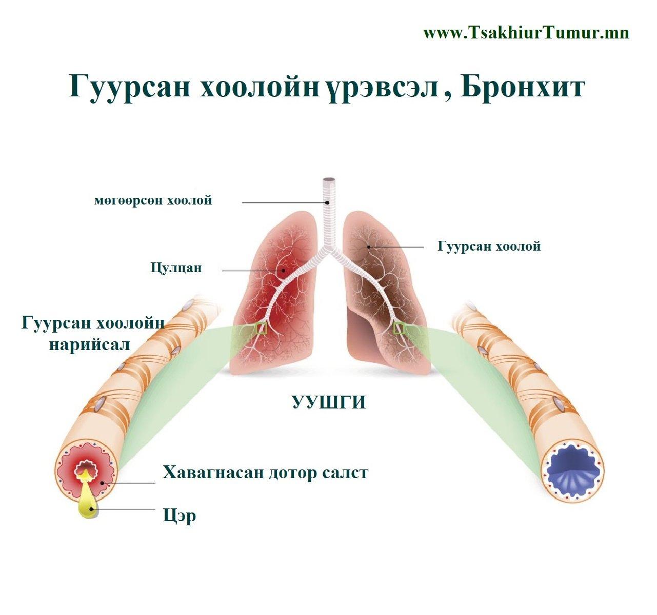 Гуурсан хоолойн бачуурал буюу уушгины бронхитын үеийн гэрээр авах арга хэмжээ