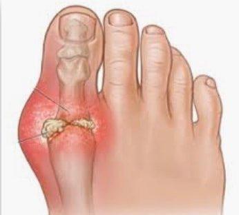 Тулай өвчний эхний шинж тэмдэг нь хөлийн эрхийн хурууны үеэр хавдаж, хүчтэй өвдөлт мэдрэгддэг.
