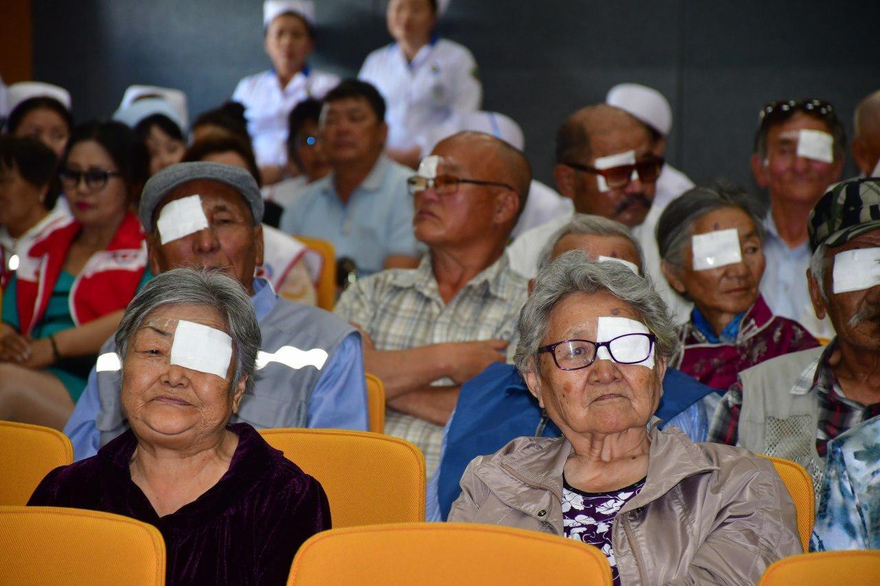 100 гаруй хүнд нүдний болор солих хагалгааг амжилттай хийлээ